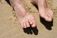 What Can Cause Hammertoe?